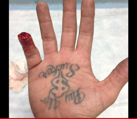 Jesse james 39 cuts off finger tip graphic photo the for Cut off tattoo